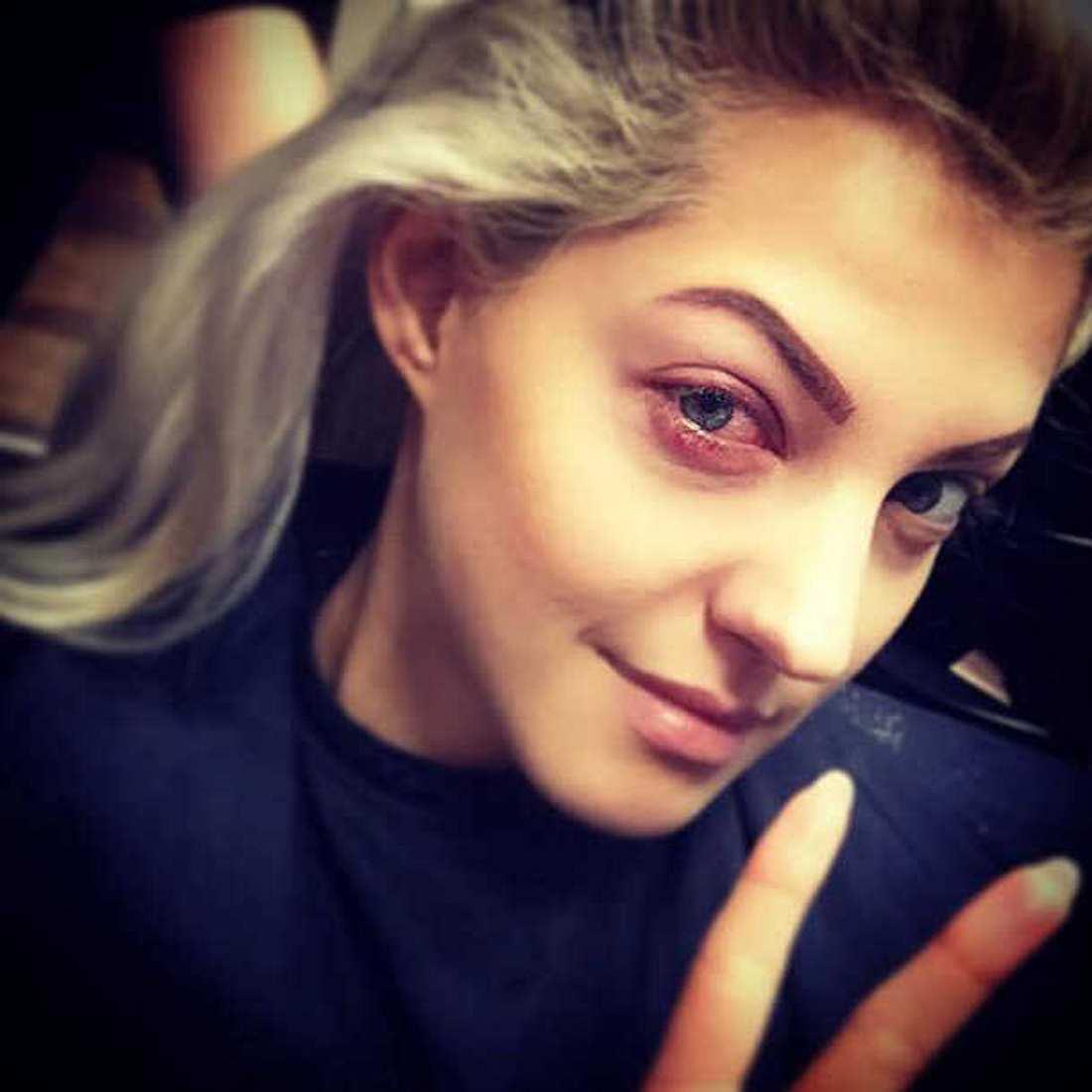 Sarah Nowak schockt mit Matsch-Auge!