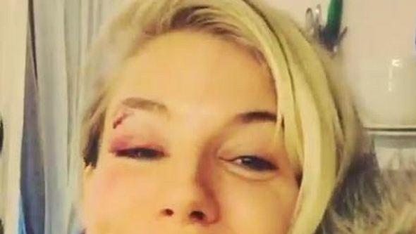 Sienna Miller hat ein blaues Auge - Foto: instagram.com/alancummingsnaps