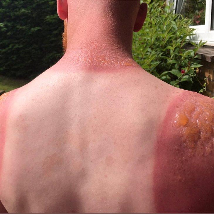 Mann postet Fotos von Horror-Sonnenbrand und warnt damit alle