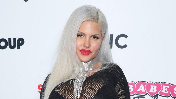 Sophia Vegas: Wieder ein Beauty-Eingriff - und Tochter Amanda ist dabei