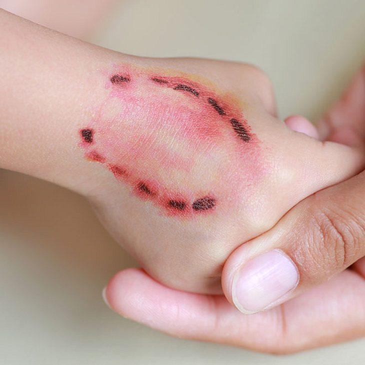 Mädchen (10) mit Tollwut infiziert