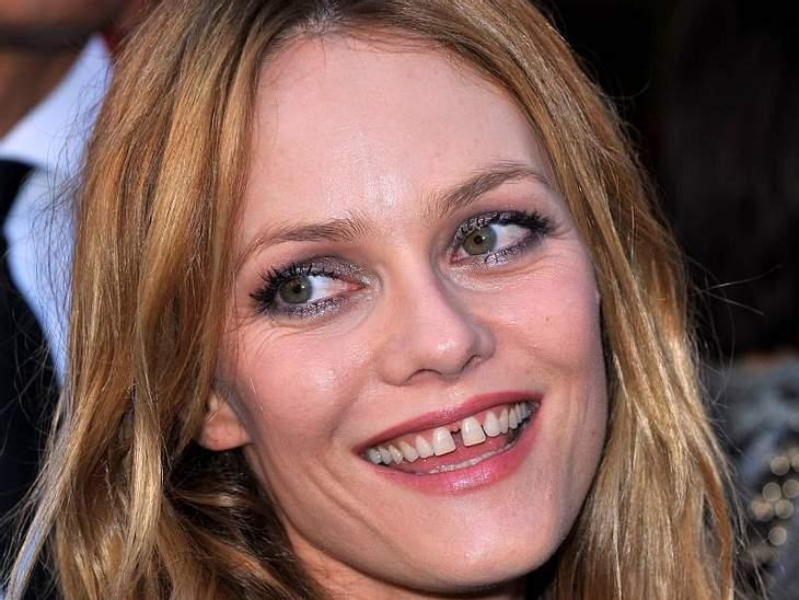 однако не менее интересно видеть, как неожиданно у знаменитостей появляется голливудская улыбка, а все