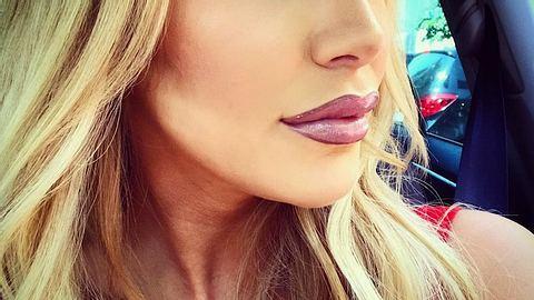 Lippen aufgespritzt: Vivien Konca war beim Beauty-Doc - Foto: Instagram / Vivien Konca