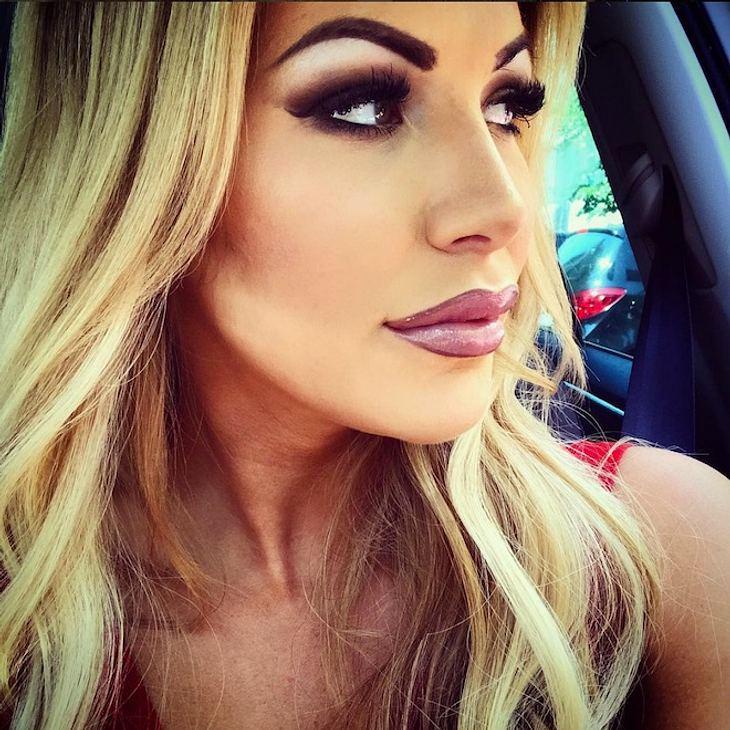Lippen aufgespritzt: Vivien Konca war beim Beauty-Doc