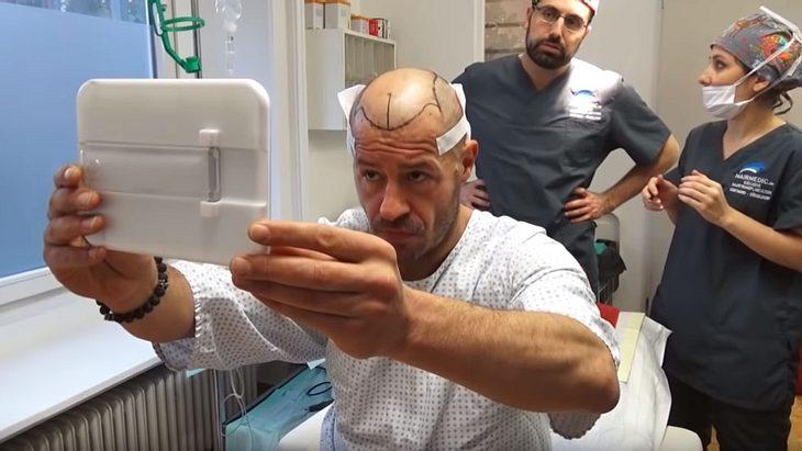 Willi Herren hatte eine Haartransplantation